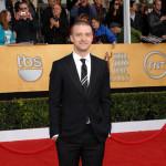 Justin Timberlake se bori protiv ćelavosti?